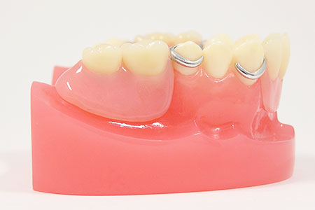 お住まいで入れ歯を調整・作製します
