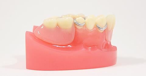 入れ歯治療に自信があります