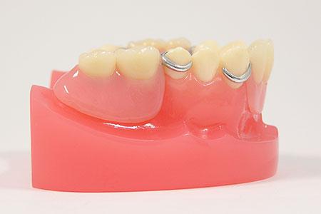 入れ歯のお悩みを解消いたします